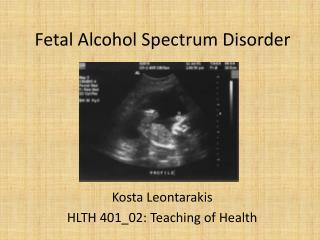 Fetal Alcohol Spectrum Disorder