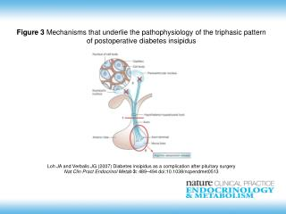 Loh JA and Verbalis JG (2007)  Diabetes insipidus as a complication after pituitary surgery