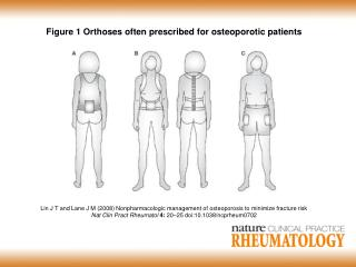 Figure 1 Orthoses often prescribed for osteoporotic patients