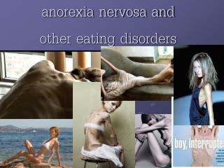 anorexia nervosa and  other eating disorders