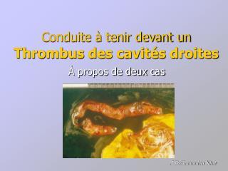 Conduite à tenir devant un  Thrombus des cavités droites