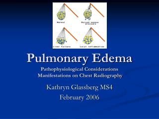 Pulmonary Edema Pathophysiological Considerations  Manifestations on Chest Radiography
