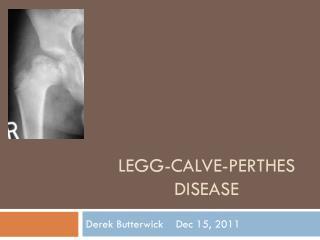 LegG -Calve- Perthes  Disease