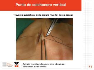 Punto de colchonero vertical           Trayecto superficial de la sutura vuelta: cerca-cerca