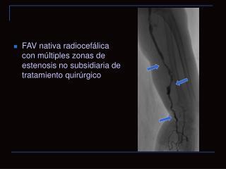 FAV nativa radiocefálica con múltiples zonas de estenosis no subsidiaria de tratamiento quirúrgico