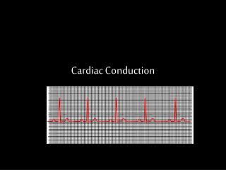 Cardiac Conduction
