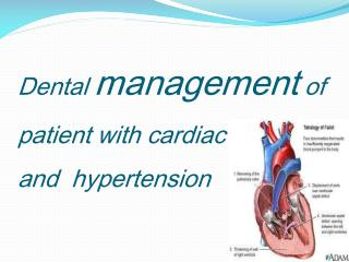 Dental  m anagement  of patient with cardiac disease and  hypertension
