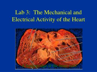 Lab 3:  The Mechanical and Electrical Activity of the Heart
