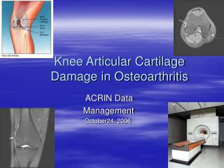 Knee Articular Cartilage  Damage in Osteoarthritis