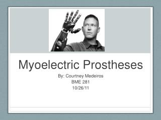 Myoelectric Prostheses