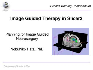 Image Guided Therapy in Slicer3