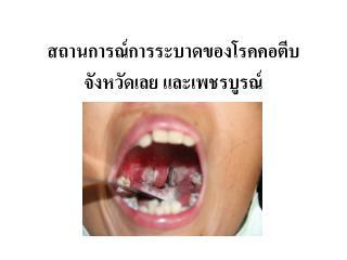 สถานการณ์การระบาดของ โรคคอตีบ จังหวัดเลย และเพชรบูรณ์
