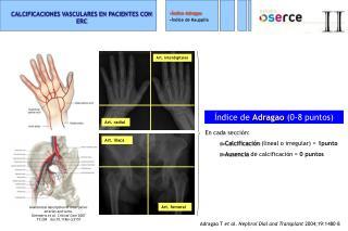 CALCIFICACIONES VASCULARES EN PACIENTES CON ERC