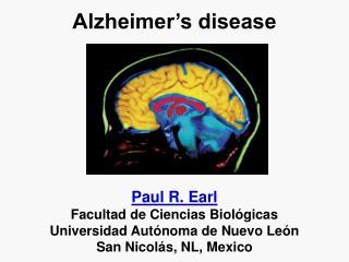 Alzheimer s disease       Paul R. Earl Facultad de Ciencias Biol gicas Universidad Aut noma de Nuevo Le n San Nicol s, N