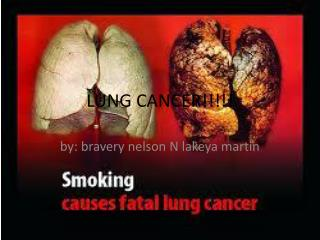 LUNG CANCER!!!!!