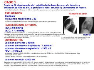 Rx lateral de tórax
