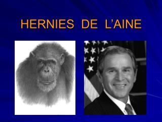 HERNIES  DE  L'AINE