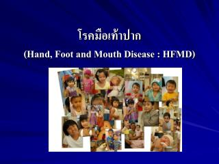 ?????????????  (Hand, Foot and Mouth Disease : HFMD)