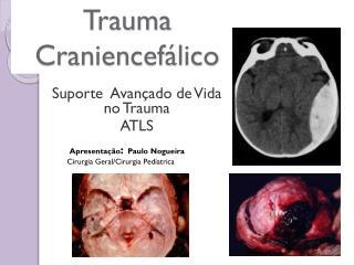 Trauma  Craniencefálico