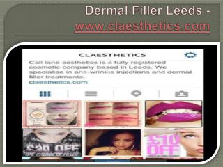 Dermal Filler Leeds - www.claesthetics.com