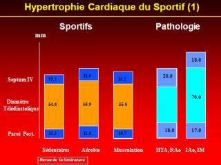 Hypertrophie cardiaque du sportif
