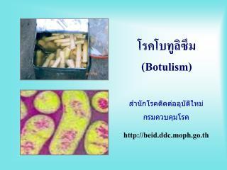 โรคโบทูลิซึม (Botulism)