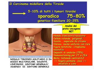 Il Carcinoma midollare della Tiroide    5-10% di tutti i tumori tiroidei  sporadico    75-80%