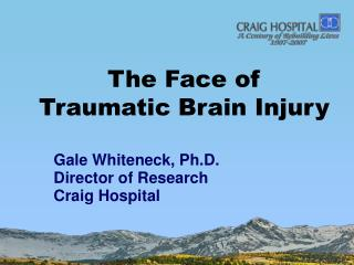 The Face of  Traumatic Brain Injury