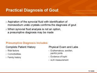 Practical Diagnosis of Gout