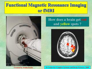 Functional Magnetic Resonance Imaging or fMRI