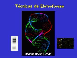 T cnicas de Eletroforese