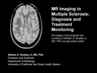 MR Imaging in Multiple Sclerosis: Diagnosis and Treatment Monitoring