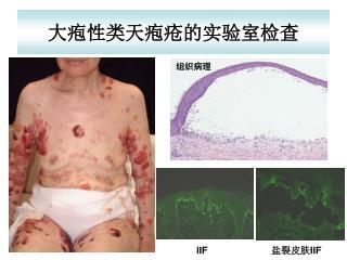 大疱性类天疱疮的实验室检查