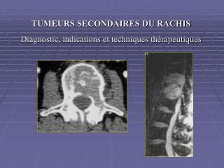 TUMEURS SECONDAIRES DU RACHIS Diagnostic, indications et techniques thérapeutiques