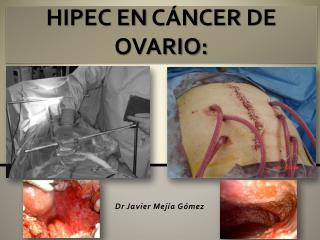 HIPEC EN  CÁNCER  DE  OVARIO: