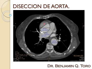 DISECCION DE AORTA.