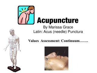 By Marissa Grace Latin: Acus needle Punctura  Values  Assessment: Continuum  .