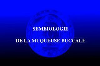 SEMEIOLOGIE  DE LA MUQUEUSE BUCCALE