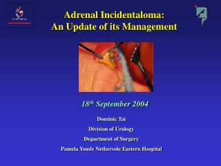 Adrenal Incidentaloma: An Update of its Management