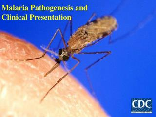 Malaria Pathogenesis and  Clinical Presentation
