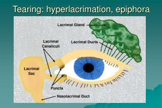 Tearing: hyperlacrimation, epiphora
