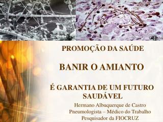 PROMOÇÃO DA SAÚDE BANIR O AMIANTO  É GARANTIA DE UM FUTURO  SAUDÁVEL