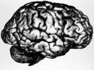 Side view of human brain