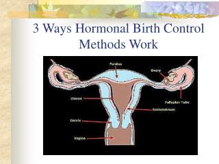 3 Ways Hormonal Birth Control Methods Work