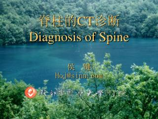 脊柱的 CT 诊断 Diagnosis of Spine