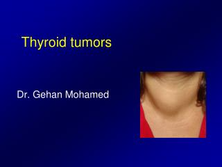 Thyroid tumors