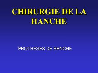 CHIRURGIE DE LA HANCHE