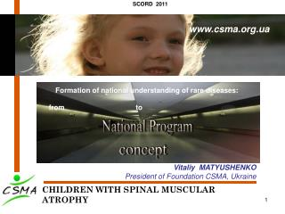 CHILDREN WITH SPINAL MUSCULAR ATROPHY