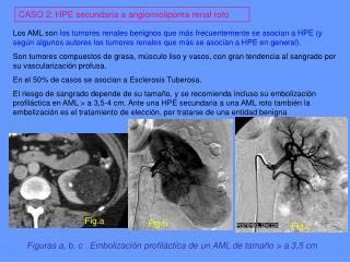 CASO 2: HPE secundaria a angiomiolipoma renal roto