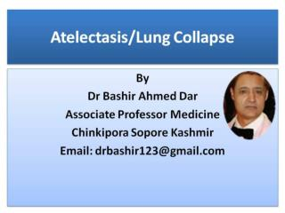 Atelectasis Lung Collapse Part-1 by Dr Bashir sopore kashmir